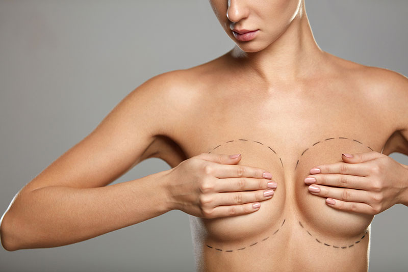 Breast augmentation - plastic surgery