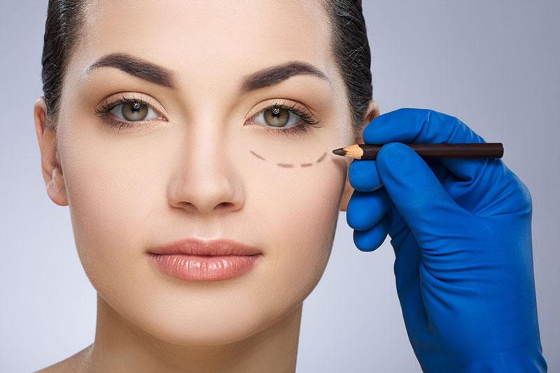 Eyelid surgery - plastic surgery